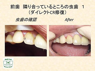 前歯 隣り合っているところの虫歯1
