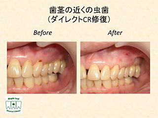 歯茎の近くの虫歯