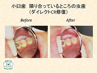 小臼歯 隣り合っているところの虫歯