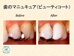 歯のマニュキュア(ビューティコート)