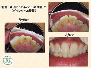 前歯 隣り合っているところの虫歯2